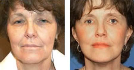 Gesichtslondon plastische Chirurgie
