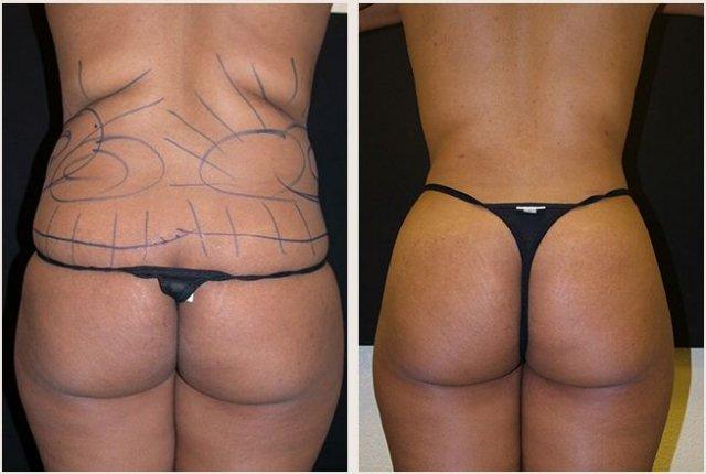 bryster graviditet silikone bryst pris