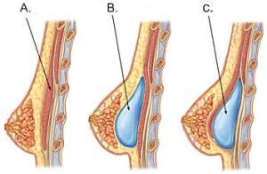 Einsetzen des Implantats - vor oder hinter den Muskel?