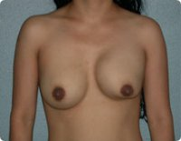 Kapselfibrose bei einer Brustvergrößerung