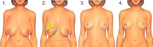 Operationsablauf bei einer Brustverkleinerung