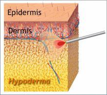 Fettreduktion mit Laser-Fettabsaugung