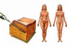 Fettabsaugen mit traditionellen methoden