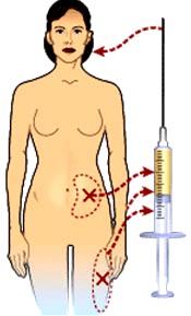 Fettinjektionen für eine Lippenkorrektur