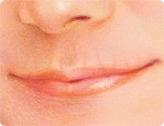 Lippenchirurgie und chirurgische Lippenkorrektur