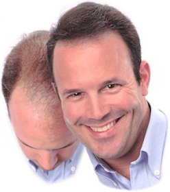 Alles über Haartransplantation bei Haarausfall