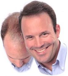 Die Salzmaske vom Haarausfall das Rezept